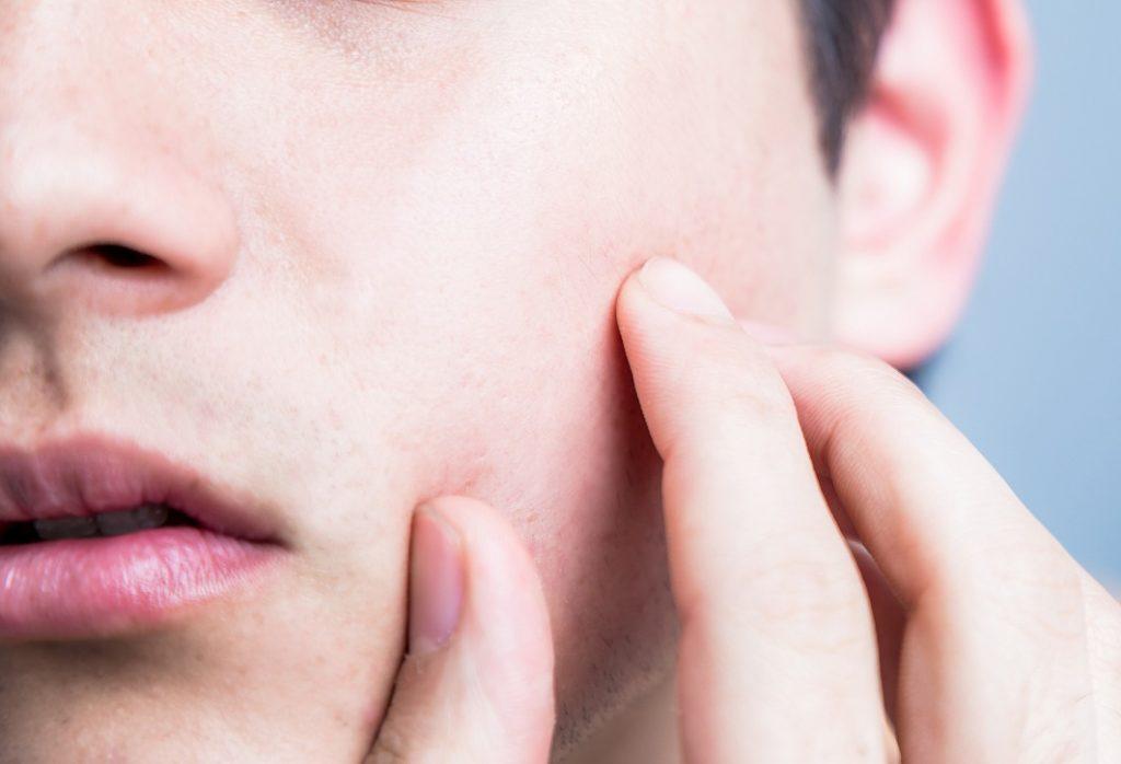 メンズの肌の特徴について知ろう