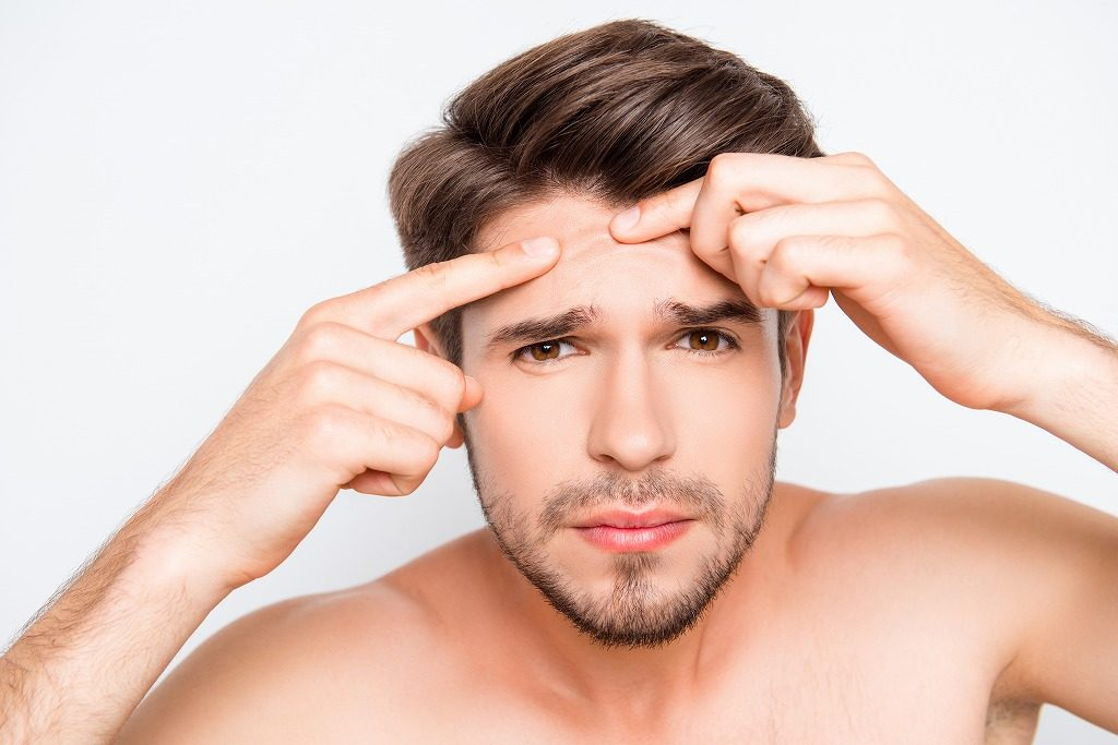 メンズオールインワン化粧品はニキビケアに有効な成分のものを選びましょう